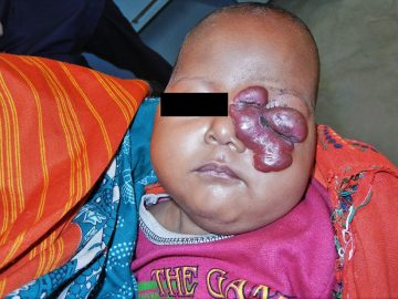 A three-month-old baby with a growth over her left eye is held by one of her parents.